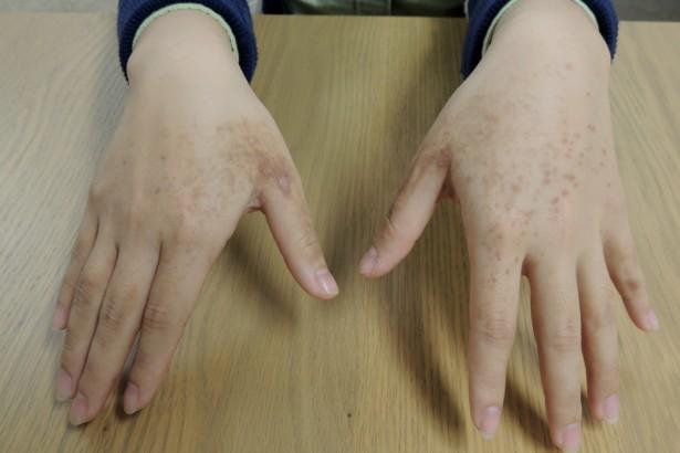 抗塵螨過敏 卻成化學過敏 洗衣精添加殺蟲殺菌劑 環保署事不關己