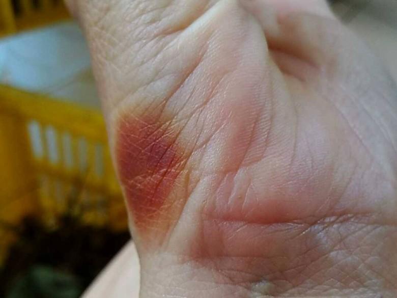 農友在去除荔枝椿象時,必須注意避免遭臭液襲擊,輕者灼傷皮膚,嚴重者恐失明。(圖/謝美麗提供)