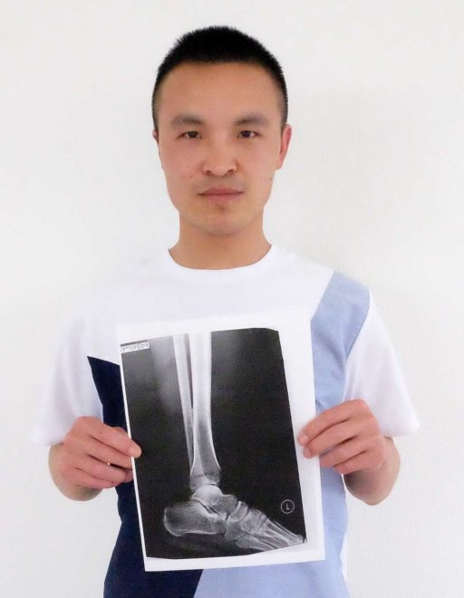 農業實習生善興棒,手中拿著醫院拍的X光照(攝影/簡嘉潁)